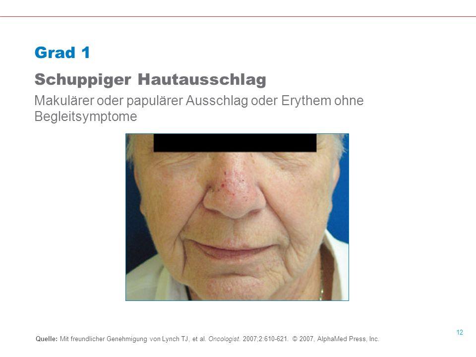 12 Grad 1 Schuppiger Hautausschlag Makulärer oder papulärer Ausschlag oder Erythem ohne Begleitsymptome Quelle: Mit freundlicher Genehmigung von Lynch TJ, et al.