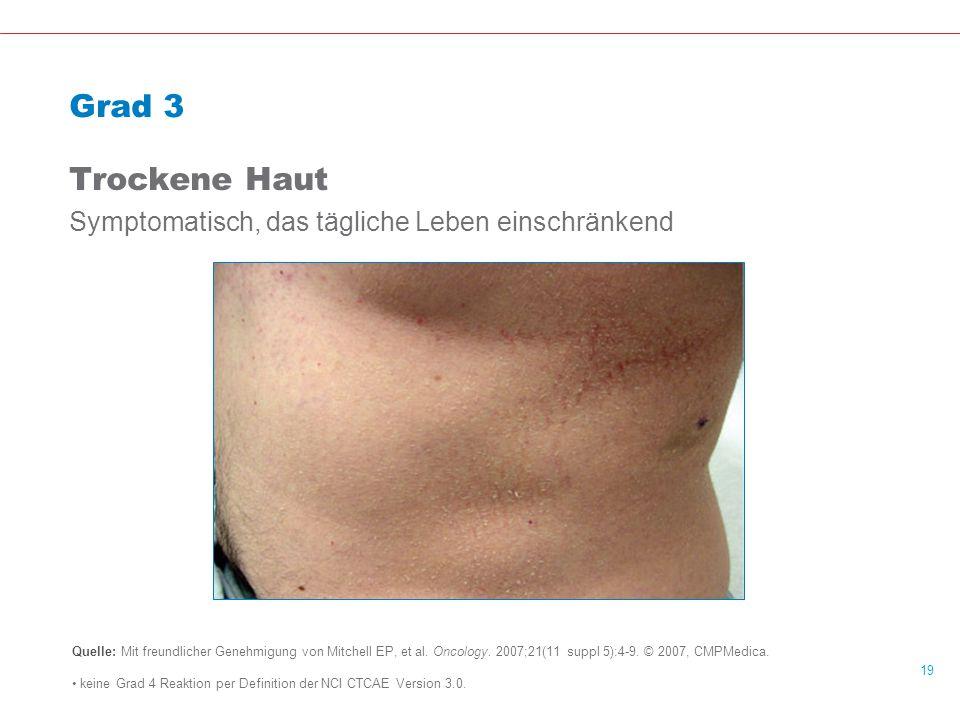 19 Grad 3 Trockene Haut Symptomatisch, das tägliche Leben einschränkend Quelle: Mit freundlicher Genehmigung von Mitchell EP, et al.