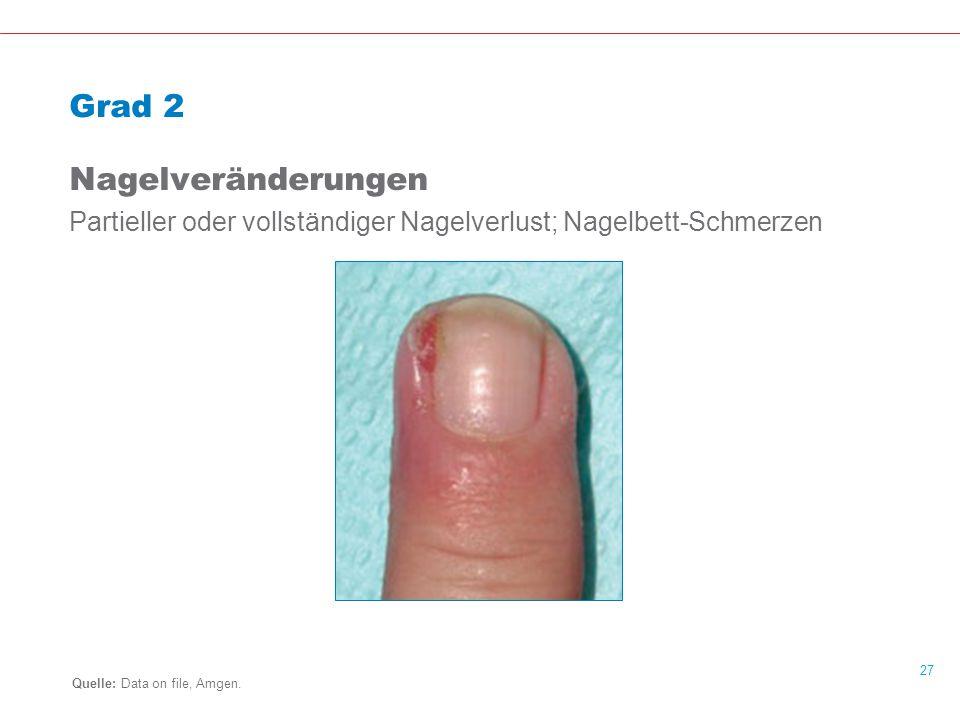 27 Grad 2 Nagelveränderungen Partieller oder vollständiger Nagelverlust; Nagelbett-Schmerzen Quelle: Data on file, Amgen.