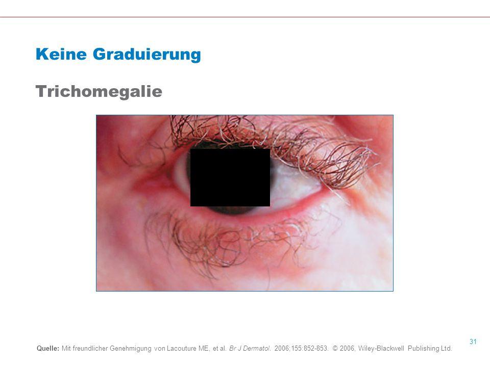31 Keine Graduierung Trichomegalie Quelle: Mit freundlicher Genehmigung von Lacouture ME, et al.
