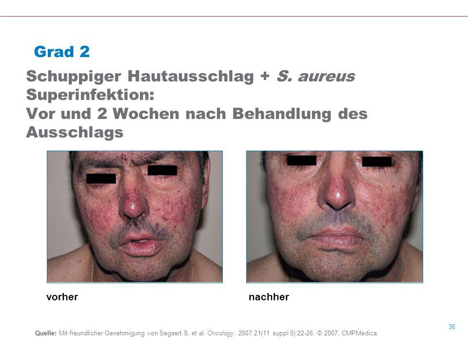 36 Grad 2 Schuppiger Hautausschlag + S.