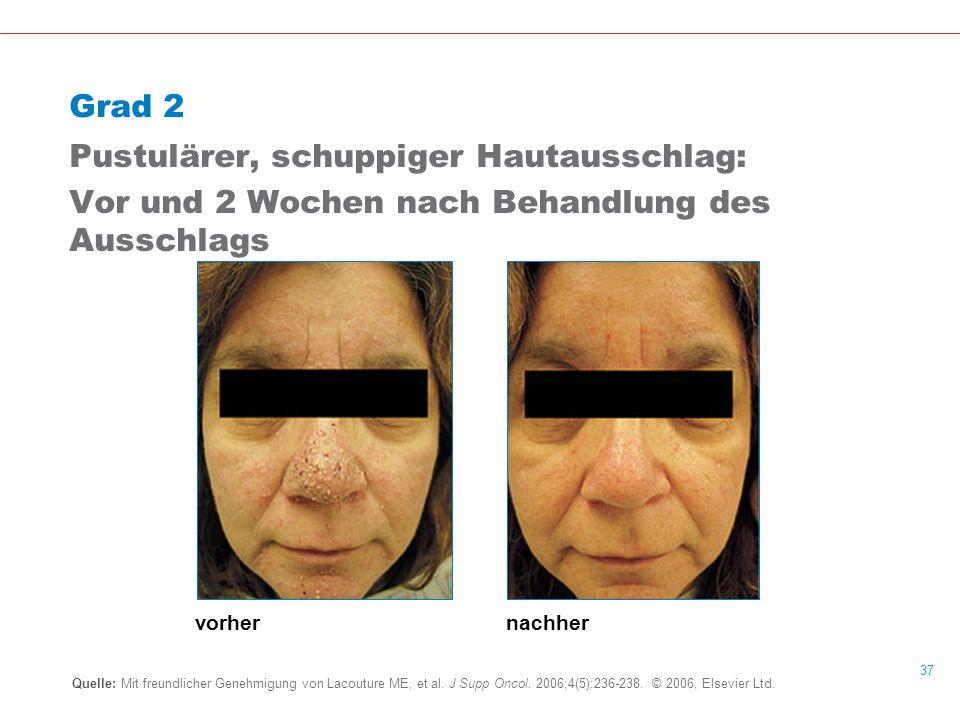 37 Grad 2 Pustulärer, schuppiger Hautausschlag: Vor und 2 Wochen nach Behandlung des Ausschlags Quelle: Mit freundlicher Genehmigung von Lacouture ME, et al.