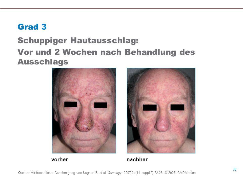 38 Grad 3 Schuppiger Hautausschlag: Vor und 2 Wochen nach Behandlung des Ausschlags Quelle: Mit freundlicher Genehmigung von Segaert S, et al.