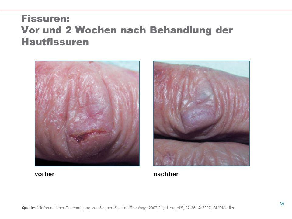 39 Fissuren: Vor und 2 Wochen nach Behandlung der Hautfissuren Quelle: Mit freundlicher Genehmigung von Segaert S, et al.
