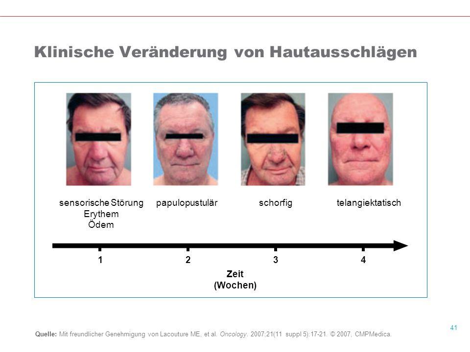 41 Klinische Veränderung von Hautausschlägen Quelle: Mit freundlicher Genehmigung von Lacouture ME, et al.