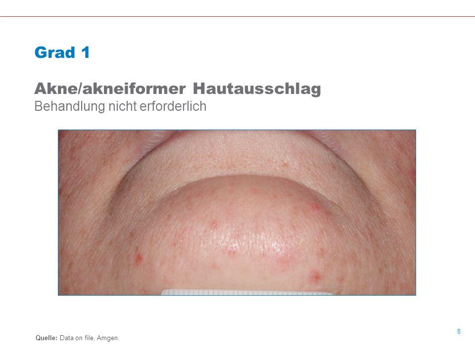9 Grad 2 Akne/akneiformer Hautausschlag Behandlung erforderlich Quelle: Data on file, Amgen.