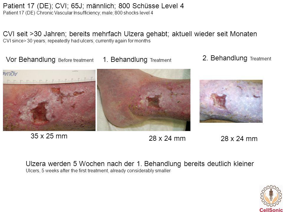 Patient 25 (WL); venös; 76J; weiblich; 1000 Schüsse Level 4 Patient 25 (WL); venous; 76yrs; female; 1000 shocks Level 4 Vor Behandlung (15.04.2014) Before treatment Nach 1 Behandlung (12.05.2014) After 1 treatment 21 x 16 mm 30 x 7 mm 9 x 5 mm20 x 7 mm Z.n.