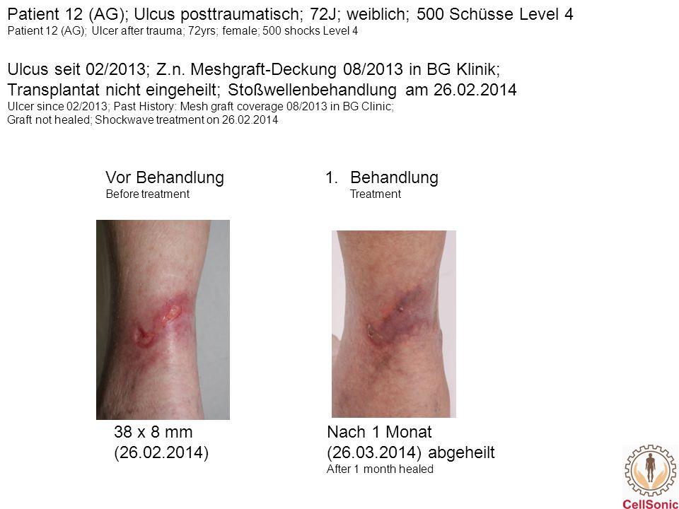 Patient 21 (SA); venös; 93J; weiblich; 600 Schüsse Level 4 Vor Behandlung Before Treatment 1.Behandlung Treatment 32 x 15 mm32 x 15 mm, deutlich flacher Clear, flat Z.n.