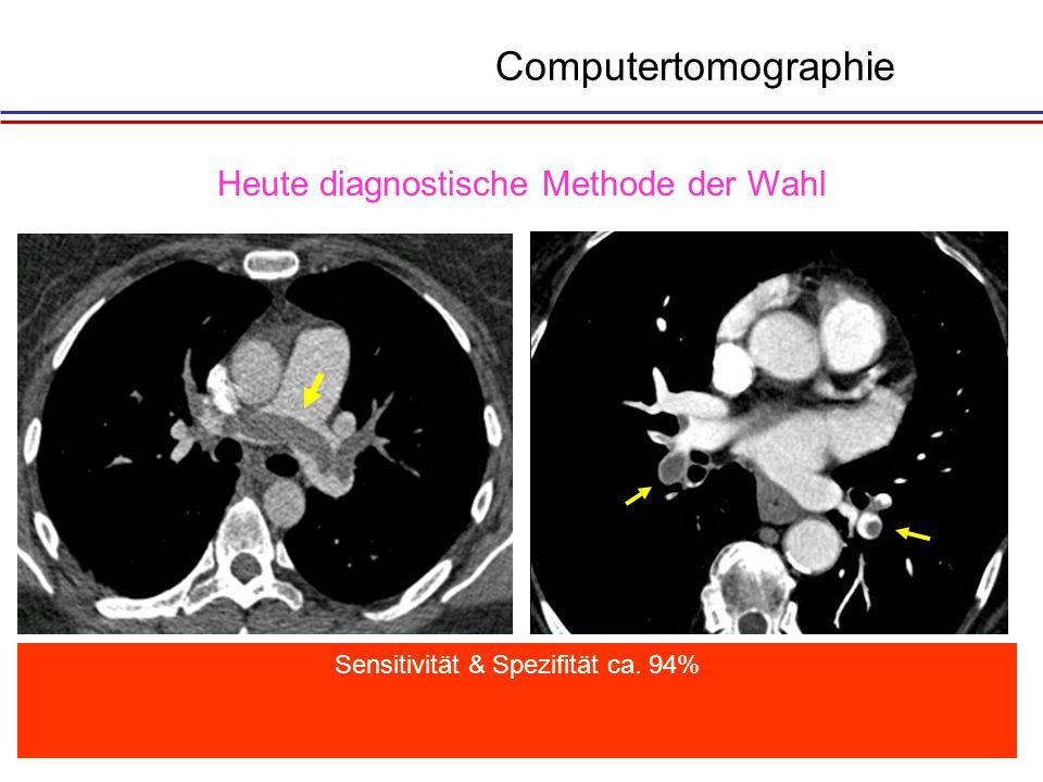 Dilatation des rechten Herzens Computertomographie
