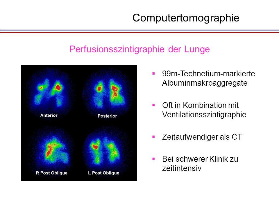 1Füllungsabbruch 2Füllungsdefekt 3Kaliber- schwankungen 4Oligämie 5asymmetrische Parenchym- kontrastierung Ermöglicht zusätzlich invasive Druckmessung Pulmonalisangiographie