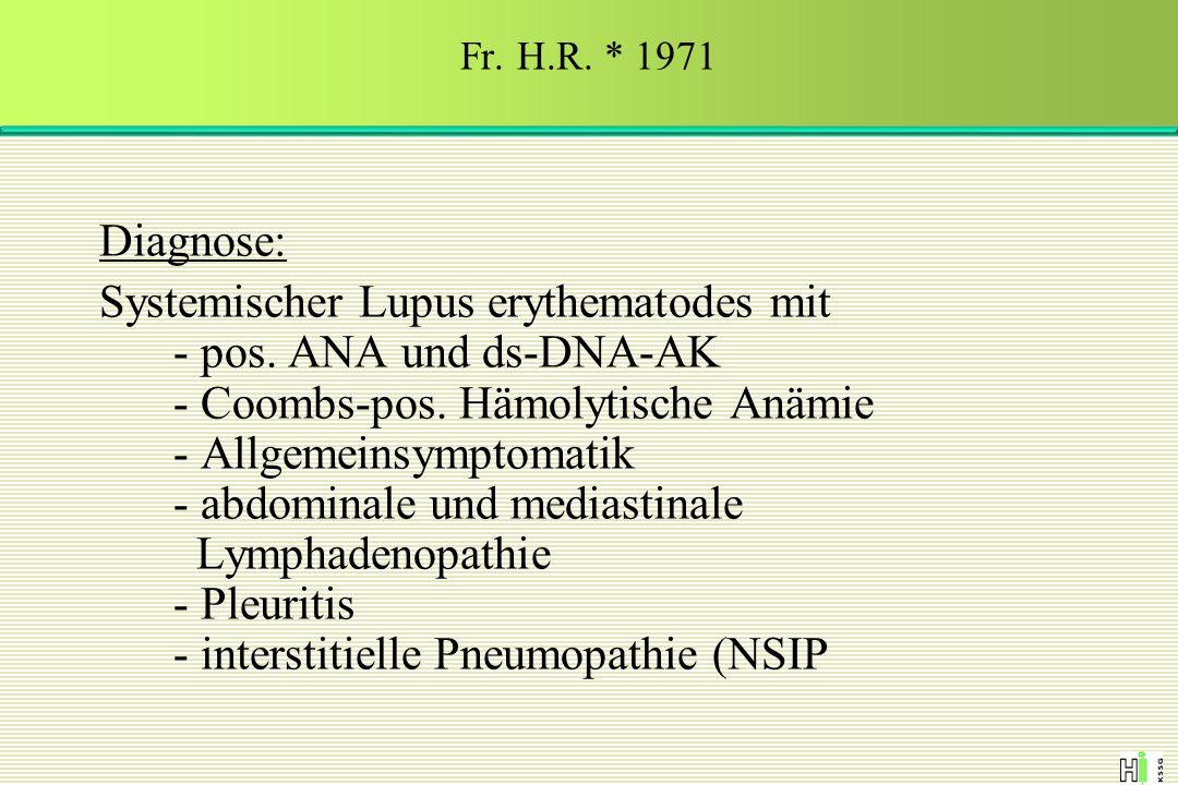 Diagnose: Systemischer Lupus erythematodes mit - pos. ANA und ds-DNA-AK - Coombs-pos. Hämolytische Anämie - Allgemeinsymptomatik - abdominale und medi