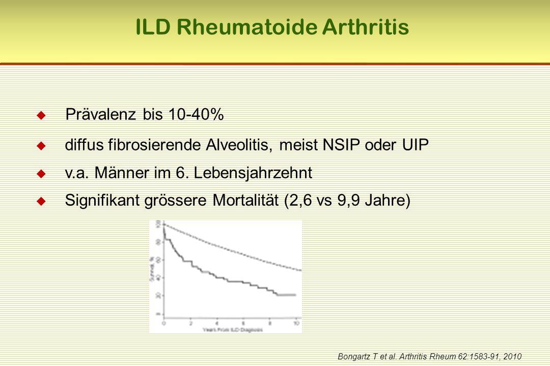  Prävalenz bis 10-40%  diffus fibrosierende Alveolitis, meist NSIP oder UIP  v.a. Männer im 6. Lebensjahrzehnt  Signifikant grössere Mortalität (2