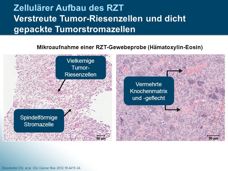 Zellulärer Aufbau des RZT Verstreute Tumor-Riesenzellen und dicht gepackte Tumorstromazellen Branstetter DG, et al. Clin Cancer Res 2012;18:4415  24.