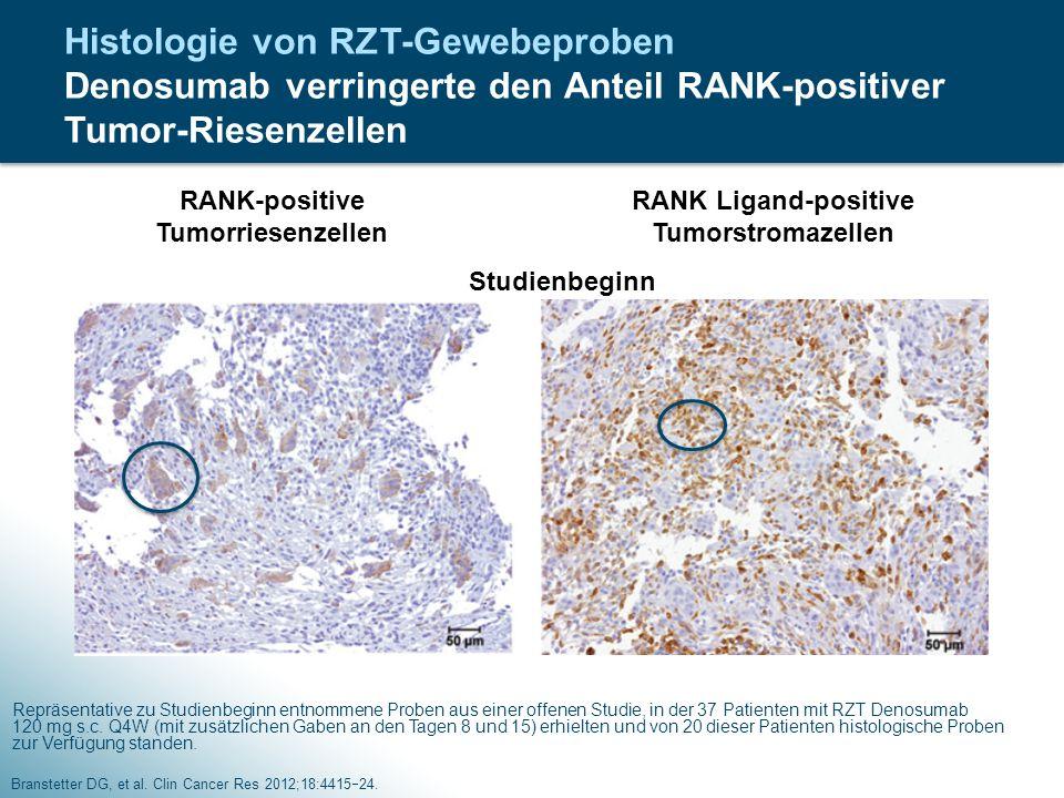 Histologie von RZT-Gewebeproben Denosumab verringerte den Anteil RANK-positiver Tumor-Riesenzellen Branstetter DG, et al. Clin Cancer Res 2012;18:4415