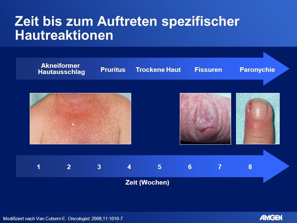 Zeit bis zum Auftreten spezifischer Hautreaktionen Modifiziert nach Van Cutsem E. Oncologist. 2006;11:1010-7 Akneiformer Hautausschlag PruritusTrocken
