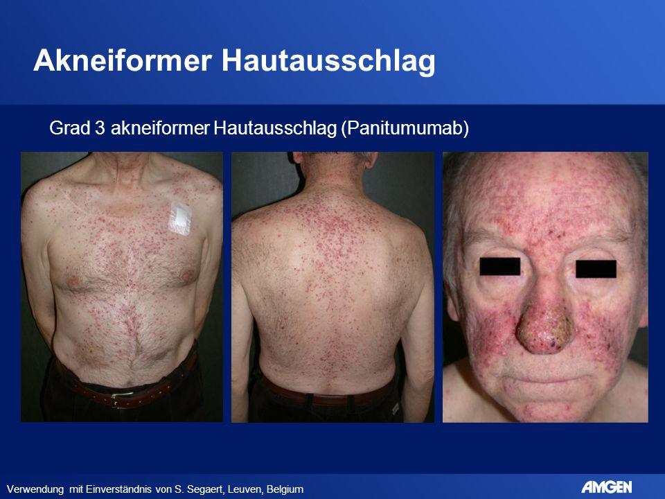 Akneiformer Hautausschlag Verwendung mit Einverständnis von S. Segaert, Leuven, Belgium Grad 3 akneiformer Hautausschlag (Panitumumab)