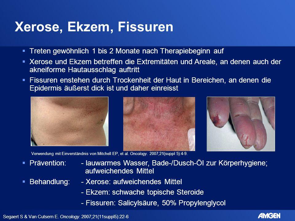 Xerose, Ekzem, Fissuren  Treten gewöhnlich 1 bis 2 Monate nach Therapiebeginn auf  Xerose und Ekzem betreffen die Extremitäten und Areale, an denen