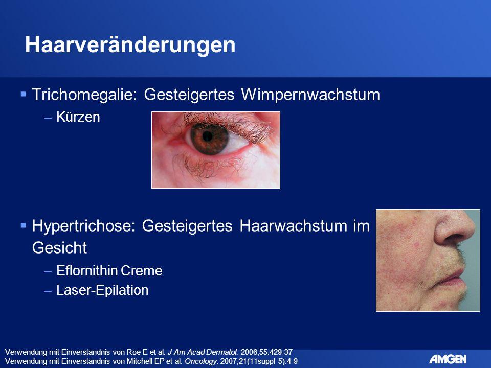 Haarveränderungen  Trichomegalie: Gesteigertes Wimpernwachstum –Kürzen  Hypertrichose: Gesteigertes Haarwachstum im Gesicht –Eflornithin Creme –Lase