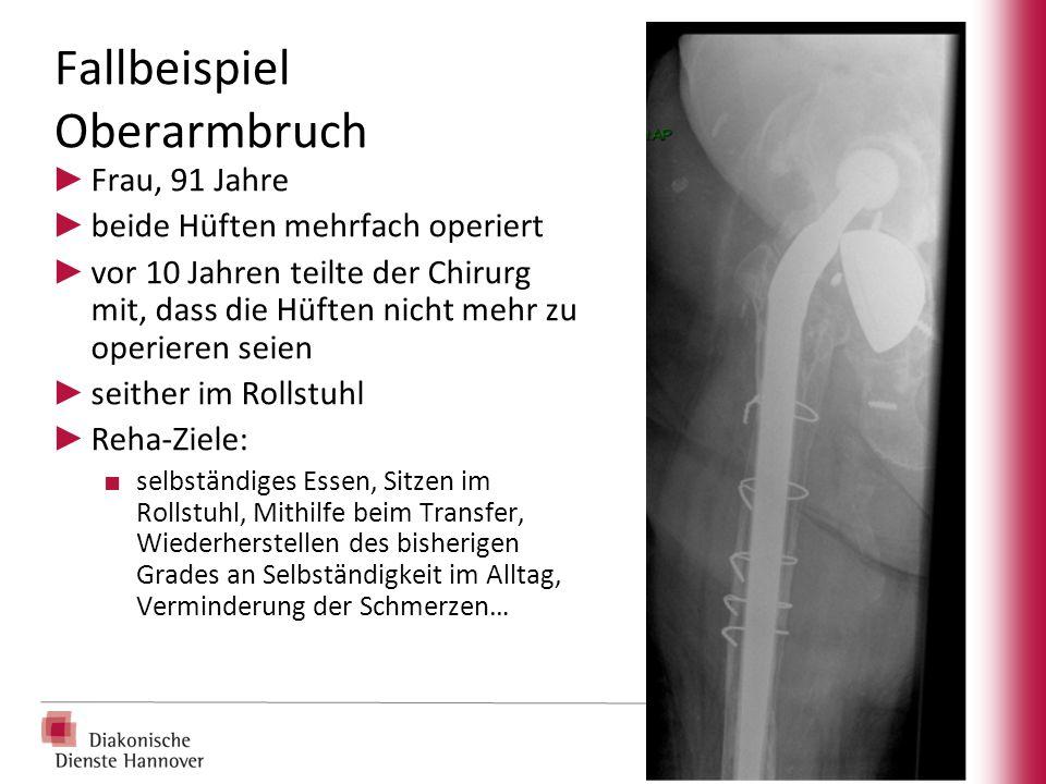 Fallbeispiel Oberarmbruch ► Frau, 91 Jahre ► beide Hüften mehrfach operiert ► vor 10 Jahren teilte der Chirurg mit, dass die Hüften nicht mehr zu oper