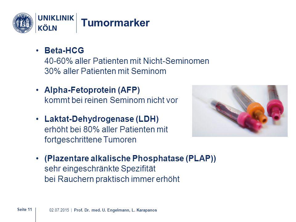 Seite 11 02.07.2015 | Prof. Dr. med. U. Engelmann, L. Karapanos Tumormarker Beta-HCG 40-60% aller Patienten mit Nicht-Seminomen 30% aller Patienten mi