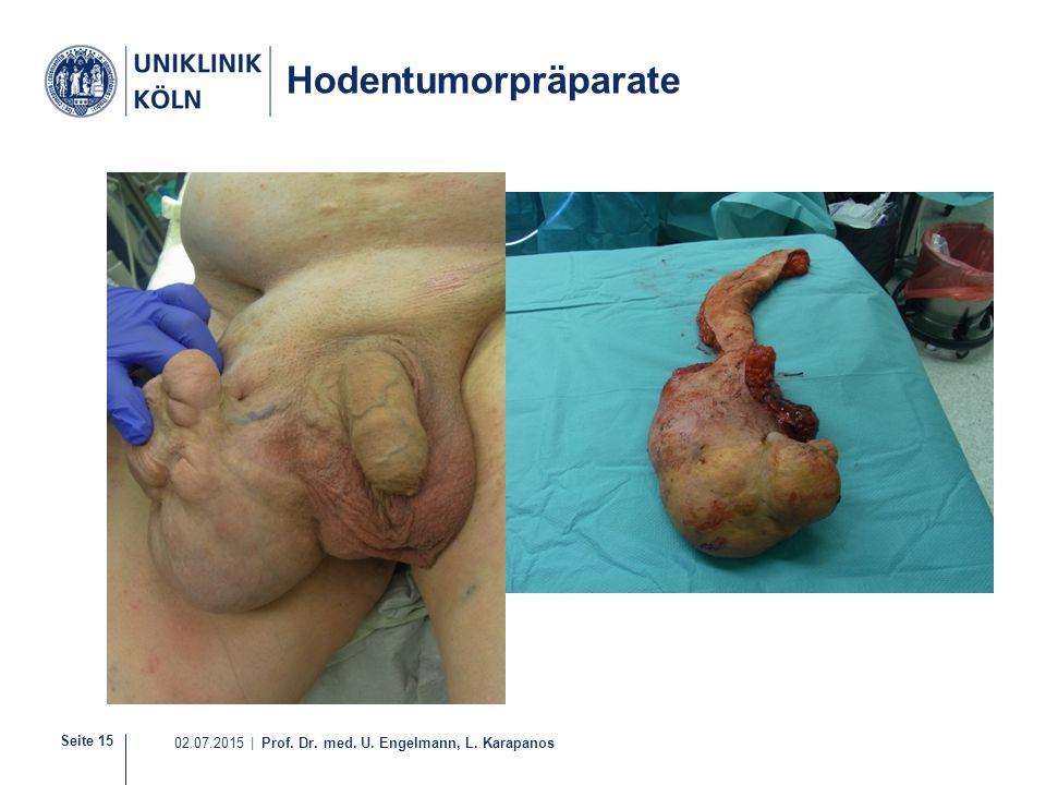 Seite 15 02.07.2015 | Prof. Dr. med. U. Engelmann, L. Karapanos 16-30 Hodentumorpräparate Nicht-Seminom Seminom
