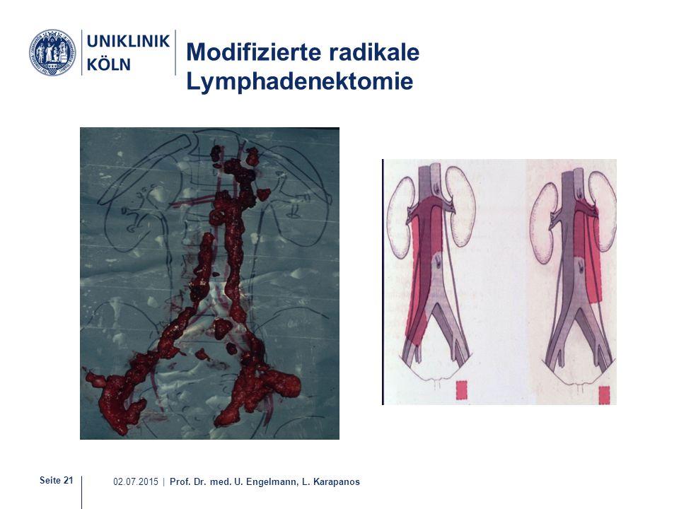 Seite 21 02.07.2015 | Prof. Dr. med. U. Engelmann, L. Karapanos 20-30 Modifizierte radikale Lymphadenektomie