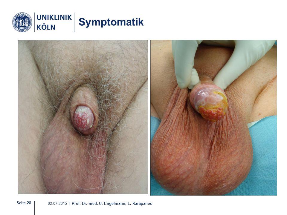 Seite 28 02.07.2015 | Prof. Dr. med. U. Engelmann, L. Karapanos Symptomatik