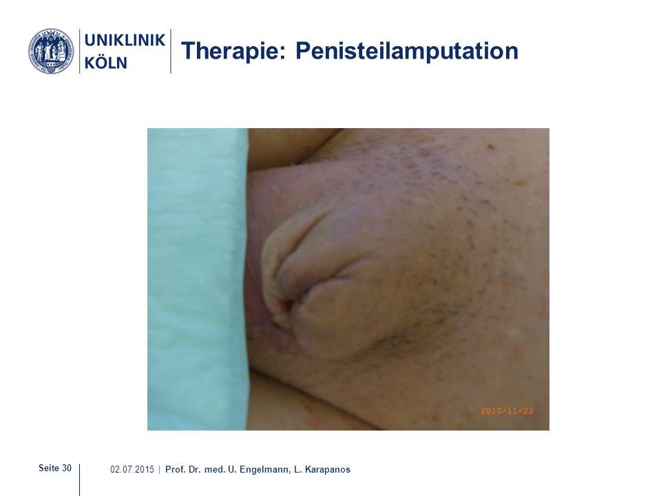 Seite 30 02.07.2015 | Prof. Dr. med. U. Engelmann, L. Karapanos Therapie: Penisteilamputation