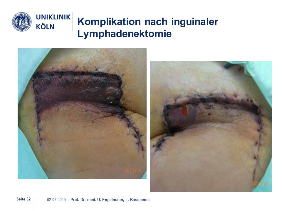 Seite 32 02.07.2015 | Prof. Dr. med. U. Engelmann, L. Karapanos Komplikation nach inguinaler Lymphadenektomie