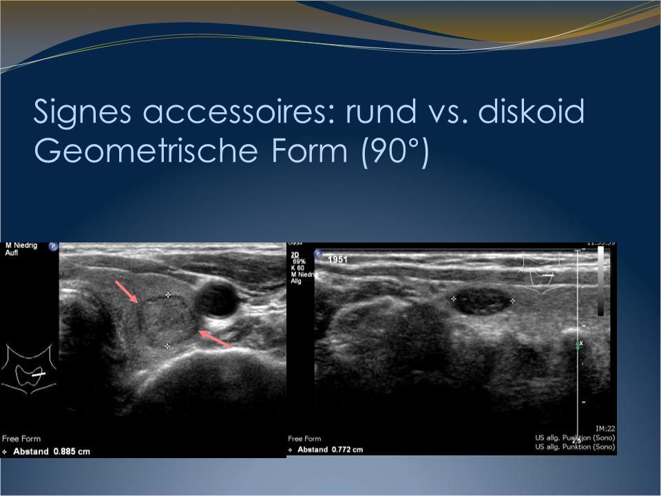 Signe accessoire: Runde/diskoide Form Karzinome haben einen höheren Metabolismus, wachsen daher schneller.