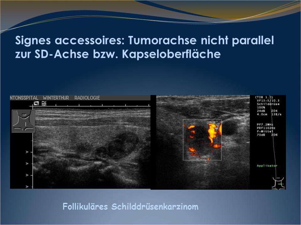 Signes accessoires: Tumorachse nicht parallel zur SD-Achse bzw. Kapseloberfläche Follikuläres Schilddrüsenkarzinom
