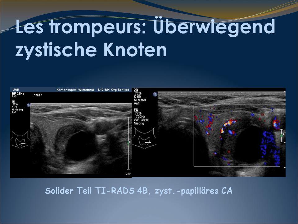 Les trompeurs: Überwiegend zystische Knoten Solider Teil TI-RADS 4B, zyst.-papilläres CA