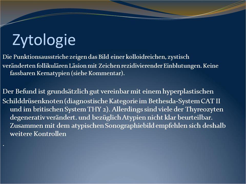 Zytologie Die Punktionsausstriche zeigen das Bild einer kolloidreichen, zystisch veränderten follikulären Läsion mit Zeichen rezidivierender Einblutun