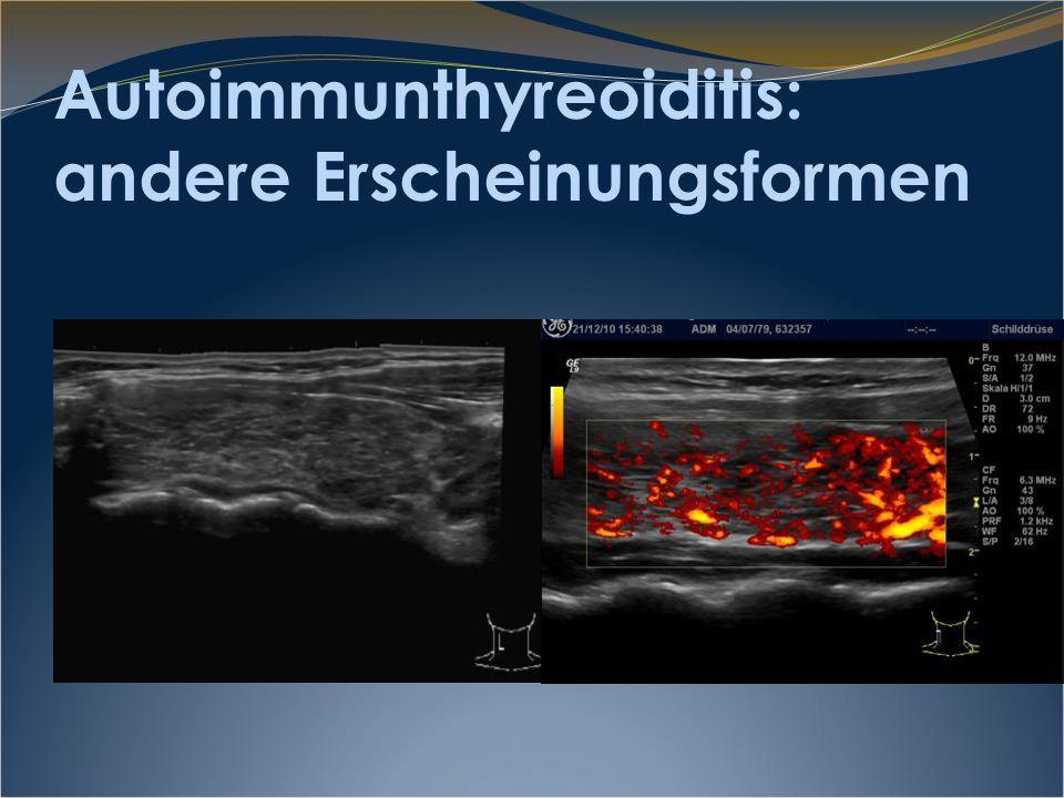 chronisch fibrosierende Thyreoiditis Hashimoto