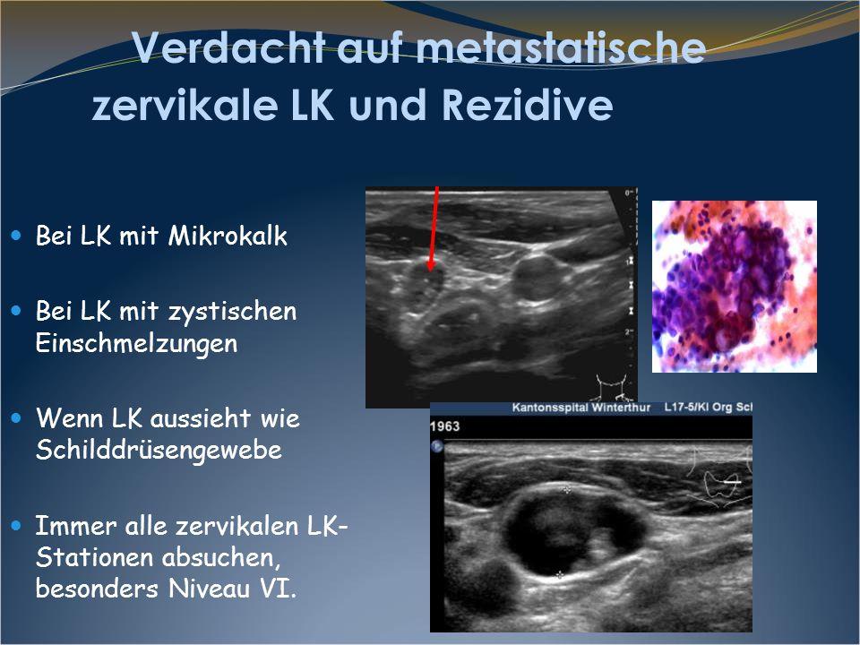 Follikuläres SD-Karzinom mit LK Metastase