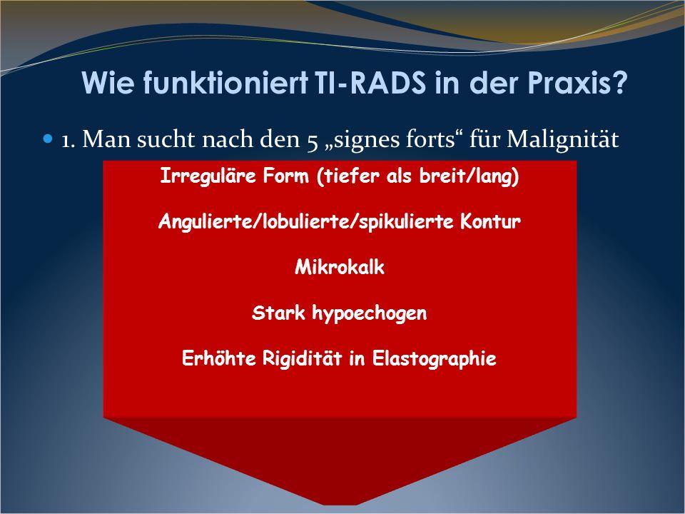 """Wie funktioniert TI-RADS in der Praxis? 1. Man sucht nach den 5 """"signes forts """" für Malignität Irreguläre Form (tiefer als breit/lang) Angulierte/lobu"""