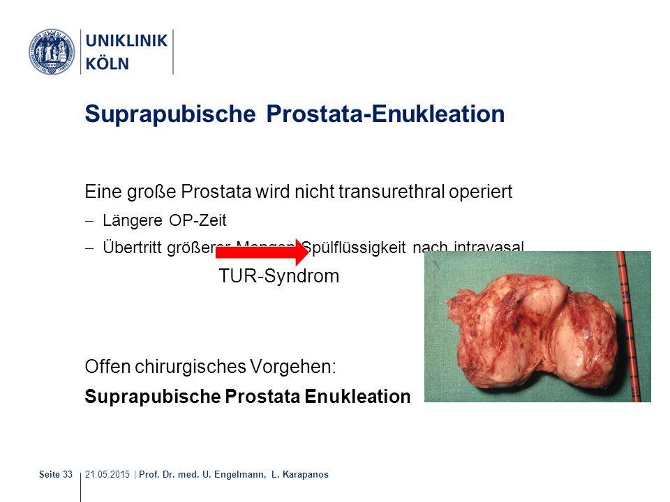21.05.2015 | Prof. Dr. med. U. Engelmann, L. Karapanos Seite 33 Suprapubische Prostata-Enukleation Eine große Prostata wird nicht transurethral operie