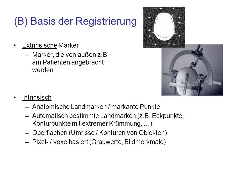 (B) Basis der Registrierung Extrinsische Marker –Marker, die von außen z.B. am Patienten angebracht werden Intrinsisch –Anatomische Landmarken / marka