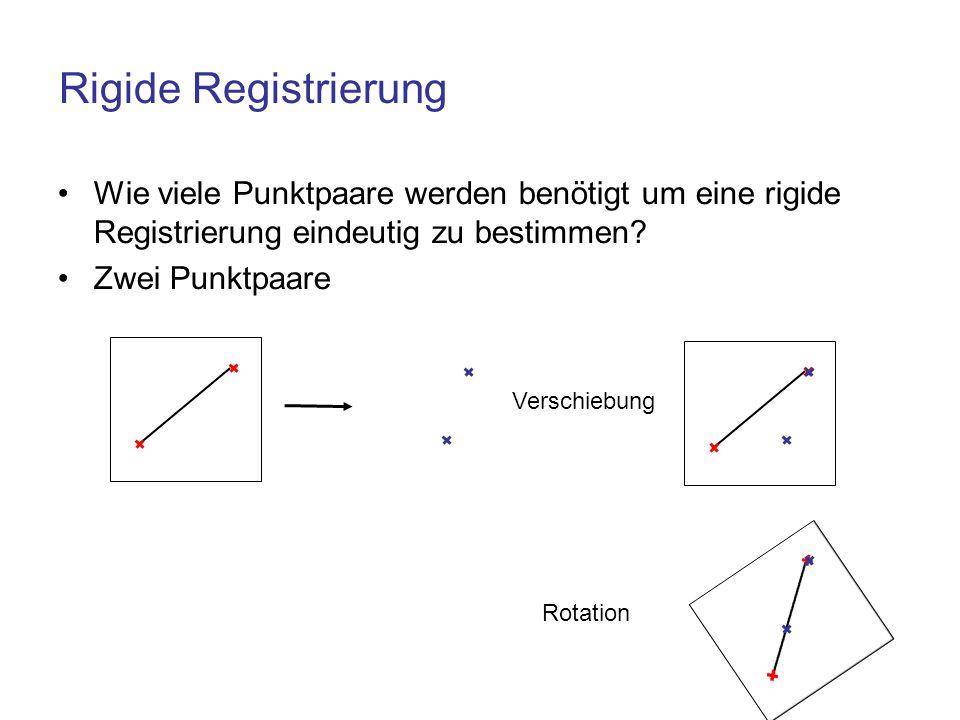 Rigide Registrierung Wie viele Punktpaare werden benötigt um eine rigide Registrierung eindeutig zu bestimmen? Zwei Punktpaare Verschiebung Rotation