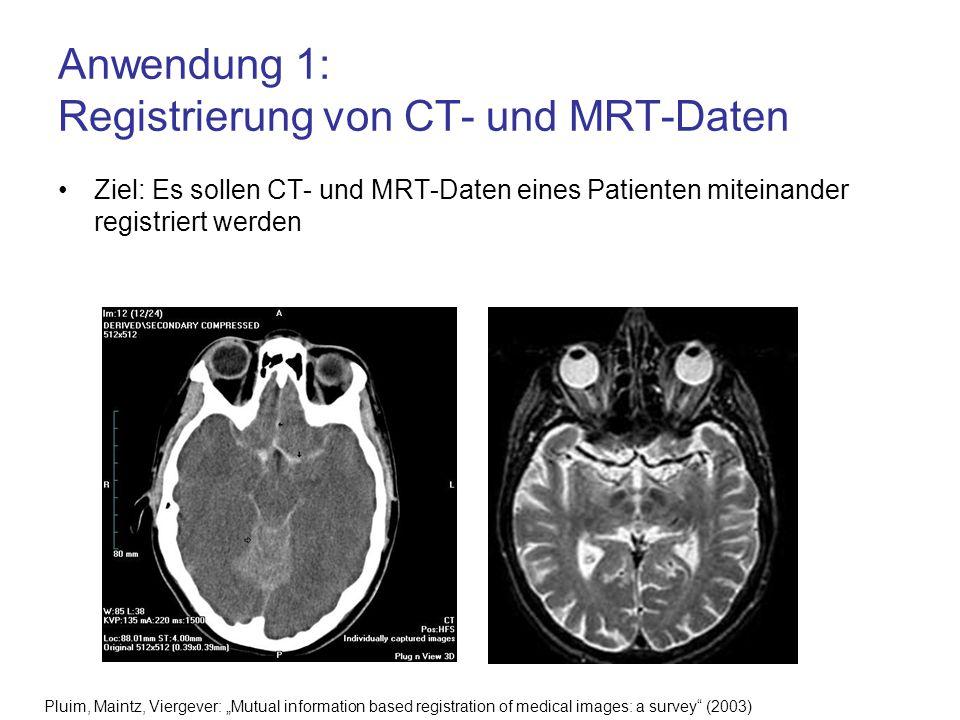 Anwendung 1: Registrierung von CT- und MRT-Daten Ziel: Es sollen CT- und MRT-Daten eines Patienten miteinander registriert werden Pluim, Maintz, Vierg