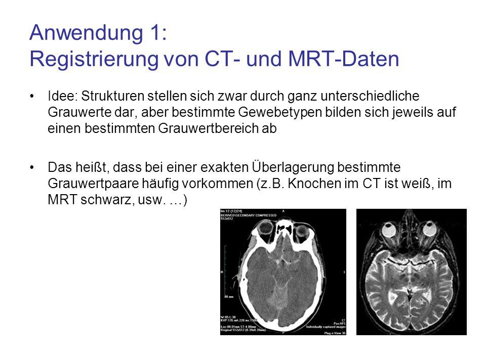 Anwendung 1: Registrierung von CT- und MRT-Daten Idee: Strukturen stellen sich zwar durch ganz unterschiedliche Grauwerte dar, aber bestimmte Gewebety