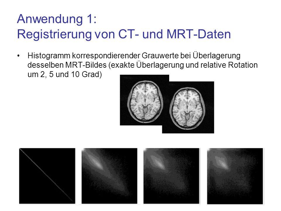 Anwendung 1: Registrierung von CT- und MRT-Daten Histogramm korrespondierender Grauwerte bei Überlagerung desselben MRT-Bildes (exakte Überlagerung un