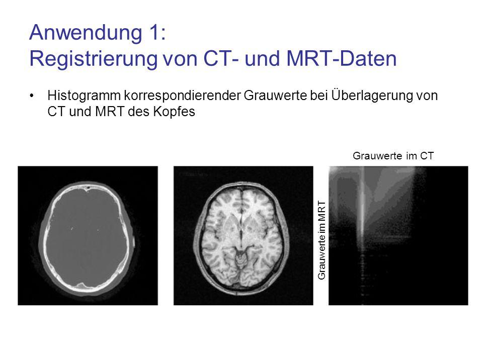 Anwendung 1: Registrierung von CT- und MRT-Daten Histogramm korrespondierender Grauwerte bei Überlagerung von CT und MRT des Kopfes Grauwerte im CT Gr