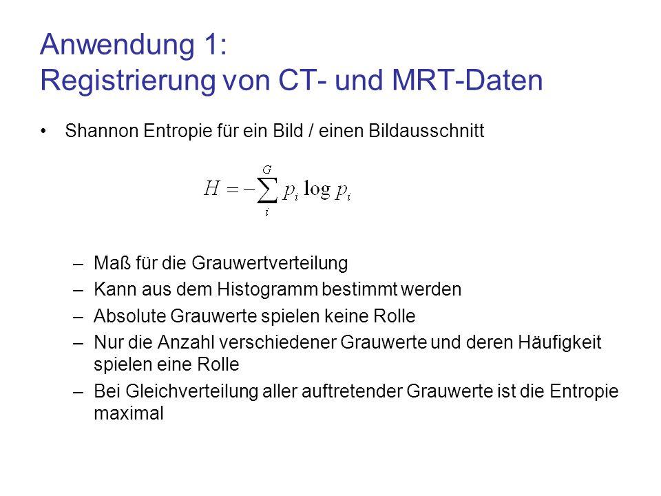 Anwendung 1: Registrierung von CT- und MRT-Daten Shannon Entropie für ein Bild / einen Bildausschnitt –Maß für die Grauwertverteilung –Kann aus dem Hi