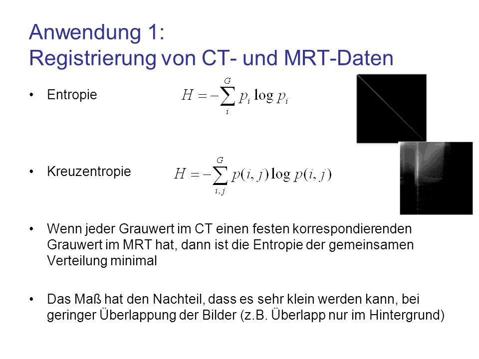 Anwendung 1: Registrierung von CT- und MRT-Daten Entropie Kreuzentropie Wenn jeder Grauwert im CT einen festen korrespondierenden Grauwert im MRT hat,