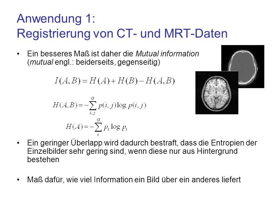 Anwendung 1: Registrierung von CT- und MRT-Daten Ein besseres Maß ist daher die Mutual information (mutual engl.: beiderseits, gegenseitig) Ein gering
