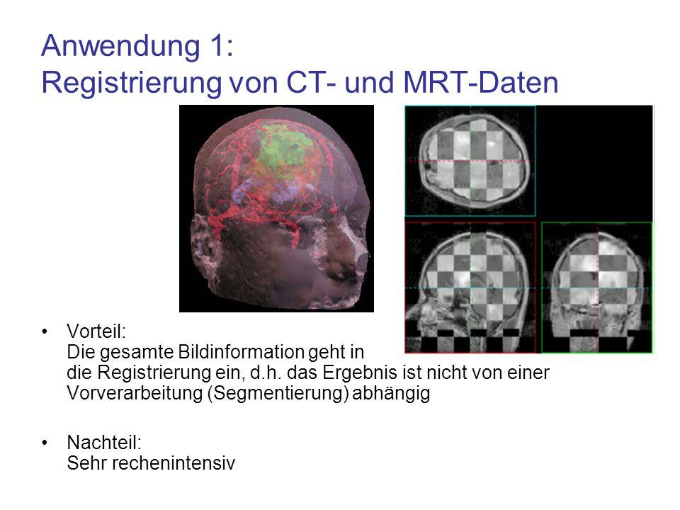 Vorteil: Die gesamte Bildinformation geht in die Registrierung ein, d.h. das Ergebnis ist nicht von einer Vorverarbeitung (Segmentierung) abhängig Nac