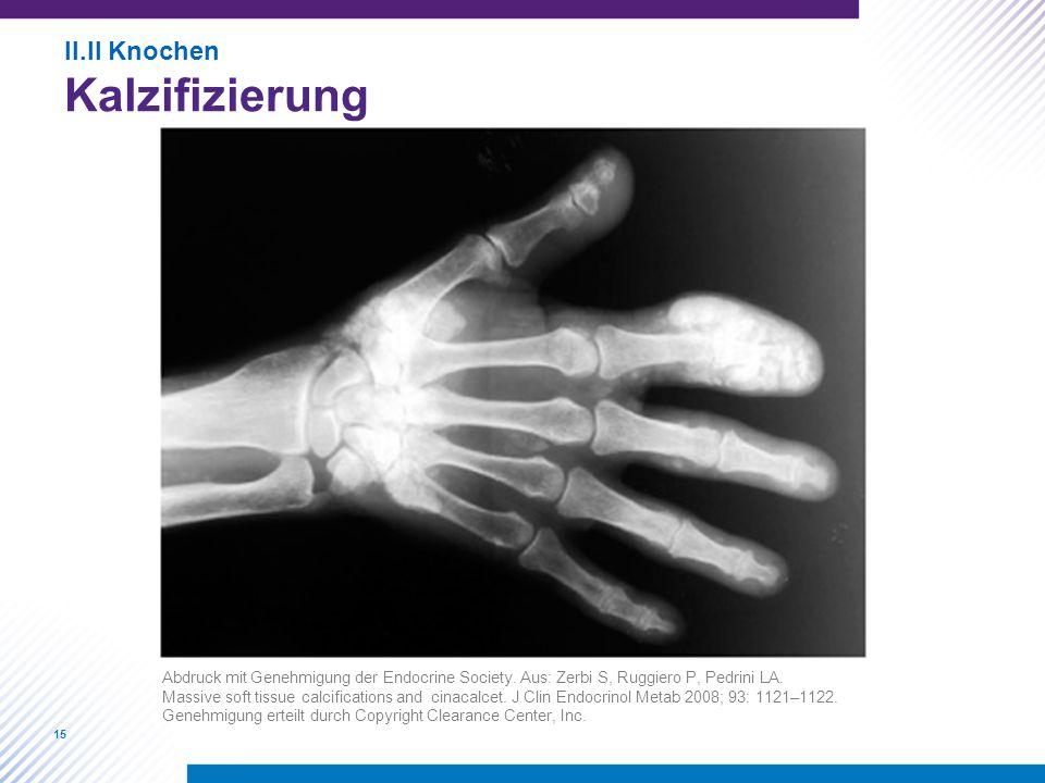 15 II.II Knochen Kalzifizierung Abdruck mit Genehmigung der Endocrine Society. Aus: Zerbi S, Ruggiero P, Pedrini LA. Massive soft tissue calcification