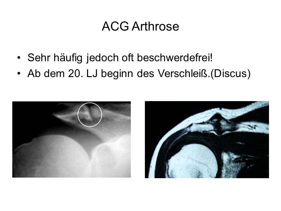 ACG Arthrose Sehr häufig jedoch oft beschwerdefrei! Ab dem 20. LJ beginn des Verschleiß.(Discus)