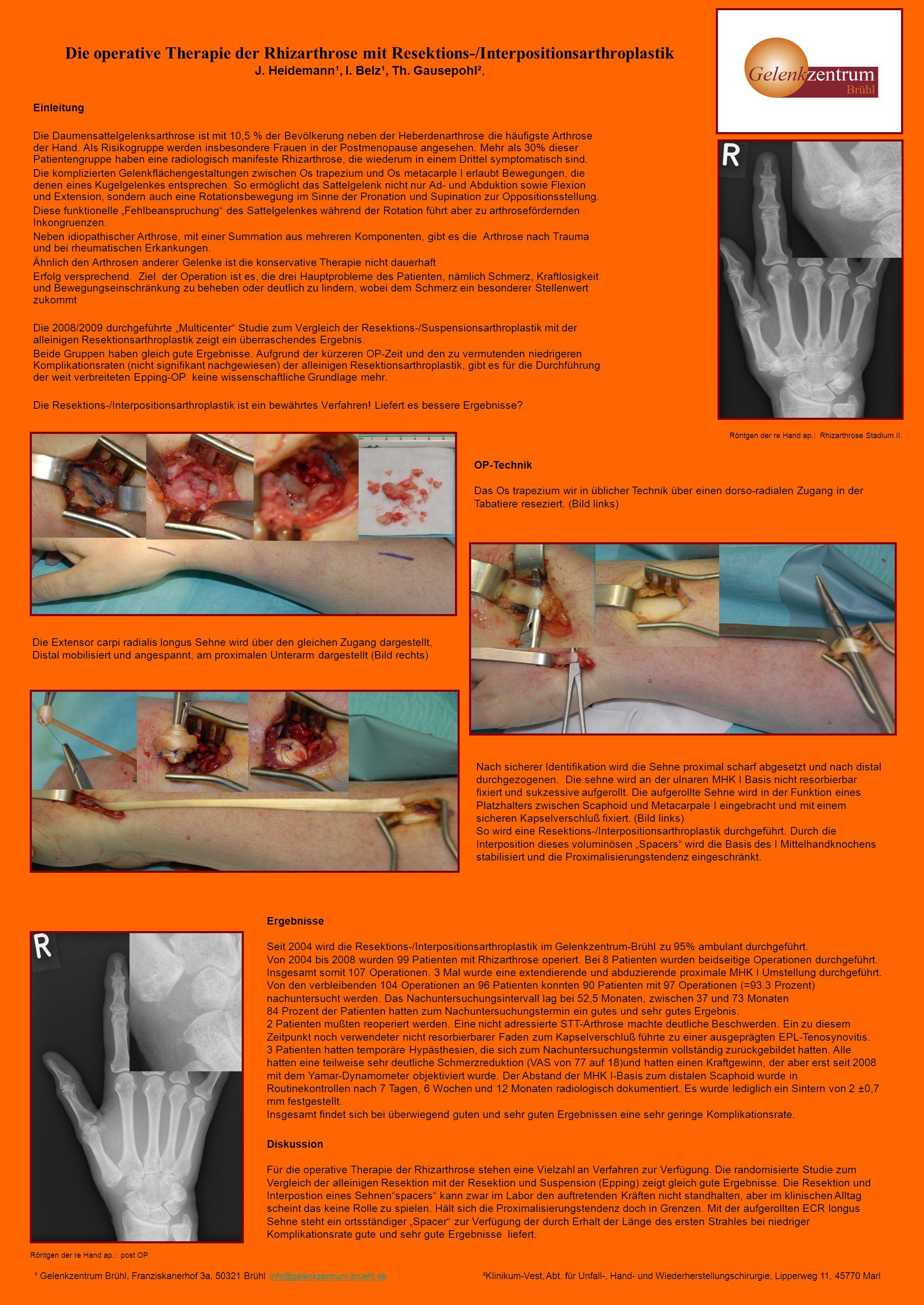 Die operative Therapie der Rhizarthrose mit Resektions-/Interpositionsarthroplastik J. Heidemann¹, I. Belz¹, Th. Gausepohl², Einleitung Die Daumensatt